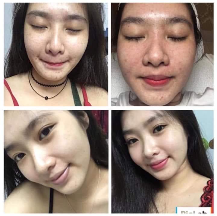 Giai đoạn tái tạo da của bạn Minh Anh sau 1,5 tháng