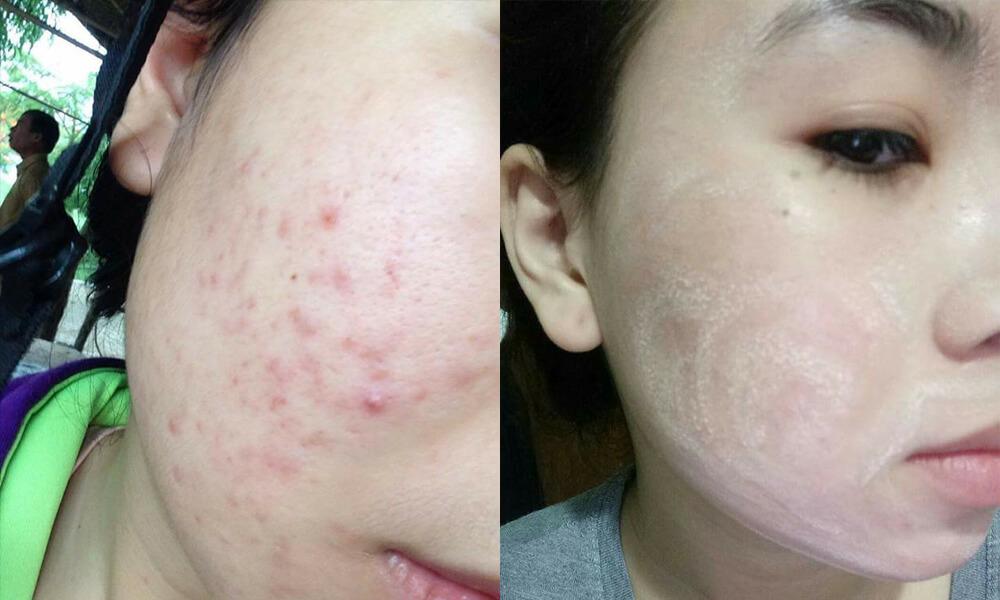 Trước và sau khi sử dụng thuốc tái tạo da của khách